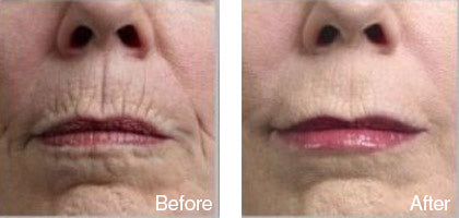 before and after nose skin smoothening treatment derma roller system image
