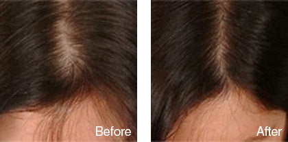 before and after hair regrowth treatment for women derma roller system image