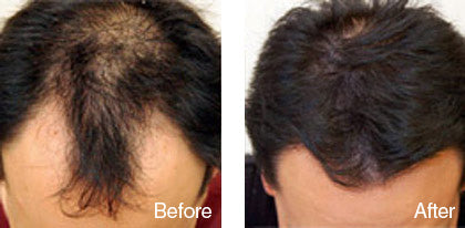 before and after hair regrowth treatment for men derma roller system image
