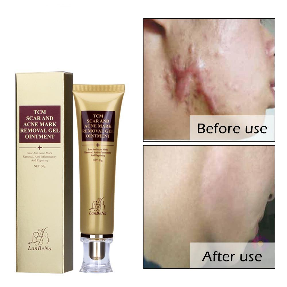 Do you feel conscious of your own skin due to pimple scars, insect bites, marks, and other scar problems?  Worry no more! Acne Scar Removal Cream Skin Repair is here to let you say goodbye to those annoying scars and marks.