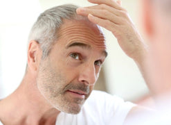 What's Better for a Balding Man: Long or Short Hair?