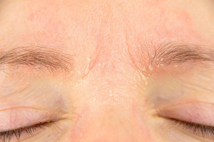close up of eczema on woman's wrinkled brow