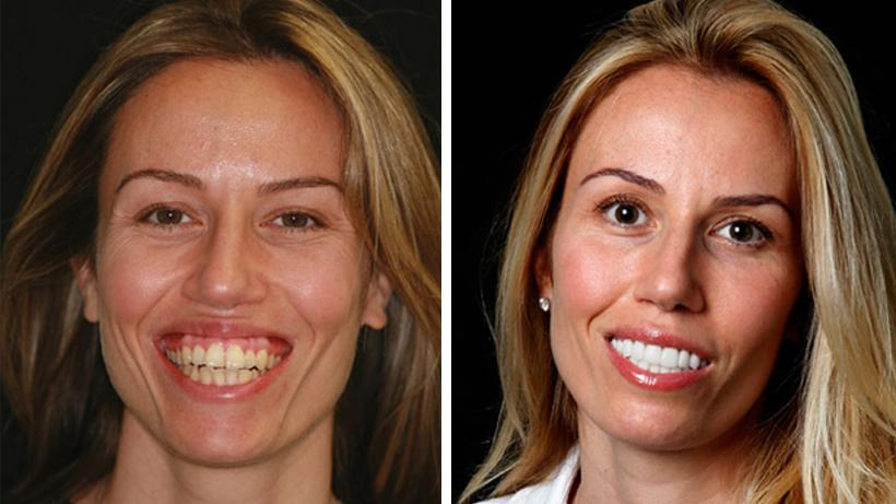 Cosmetic teeth fit at home do it yourself smile makeover flashbuy cosmetic teeth fit at home do it yourself smile makeover solutioingenieria Gallery