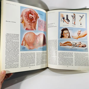 The CIBA Collection of Medical Illustrations Reproduction System Volume 2  by Frank Netter, MD 1969