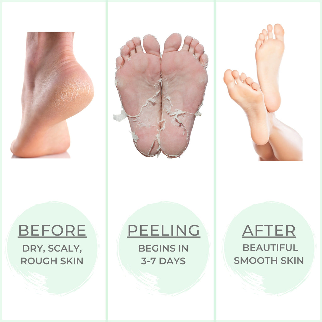 Pretti Feet Exfoliating Foot Peel