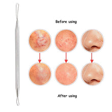 Load image into Gallery viewer, 3PCS Black Head,White Head & Pimples Remover Set