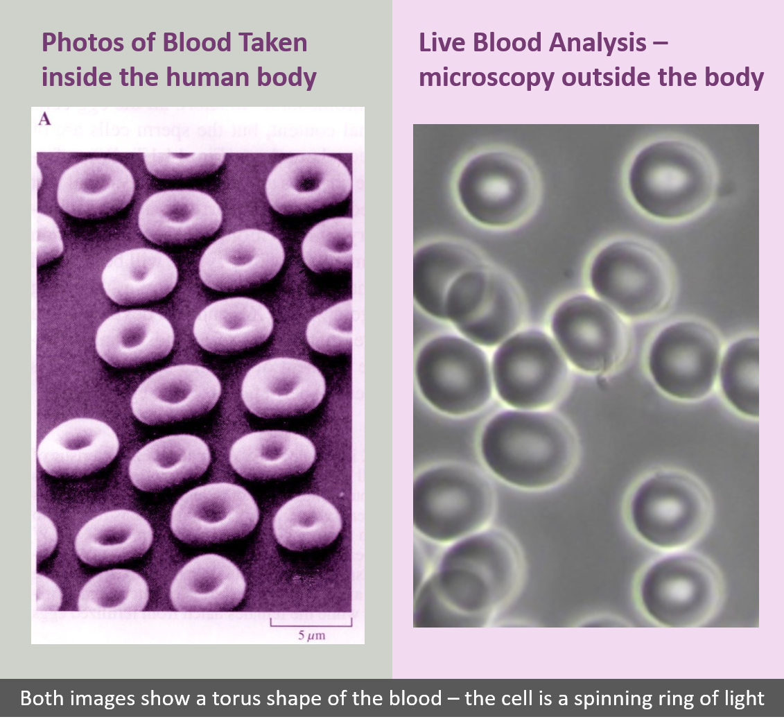 blood cells are effected by wireless radiation