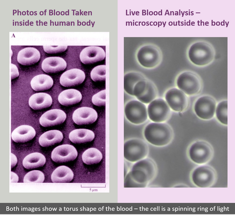 Blood cells effected by 5g radiation