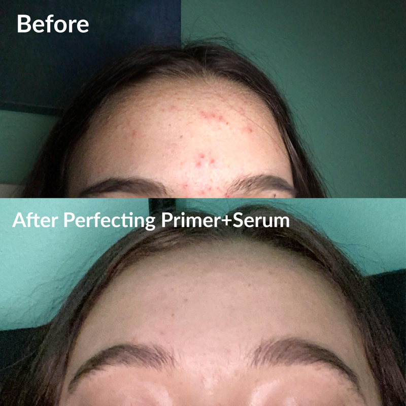 Perfecting Primer+Serum | Clear Skin Serum