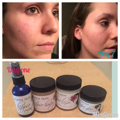 Hippie Skin Care - Mariah Before and After