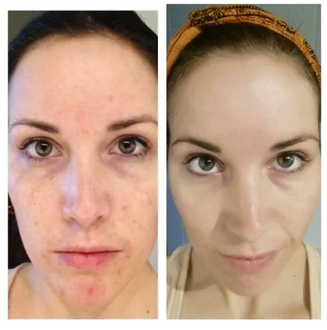 Bethany Before-After Hippie Skin