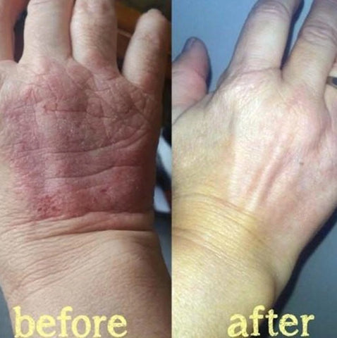 Image of Psoriasis Treatment Cream