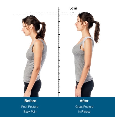 Image of Smart Posture Corrector