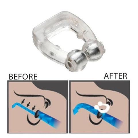 Image of Anti Snore Device