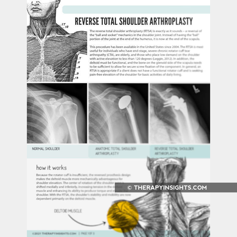 Load image into Gallery viewer, Reverse Total Shoulder Arthroplasty