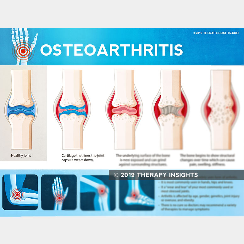 Load image into Gallery viewer, Osteoarthritis - Occupational therapy - physical therapy - handout for patients - health literacy - Therapy Insights - Therapy Fix