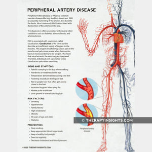 Load image into Gallery viewer, Peripheral Artery Disease
