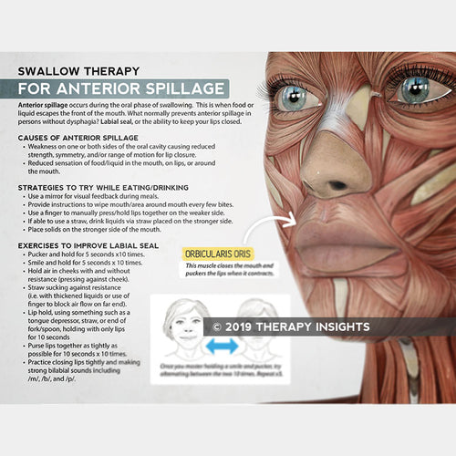 Swallow therapy for anterior spillage - dysphagia handout - speech therapy materials for adults - labial seal - labial strength - dysphagia therapy - Therapy Insights - Therapy Fix