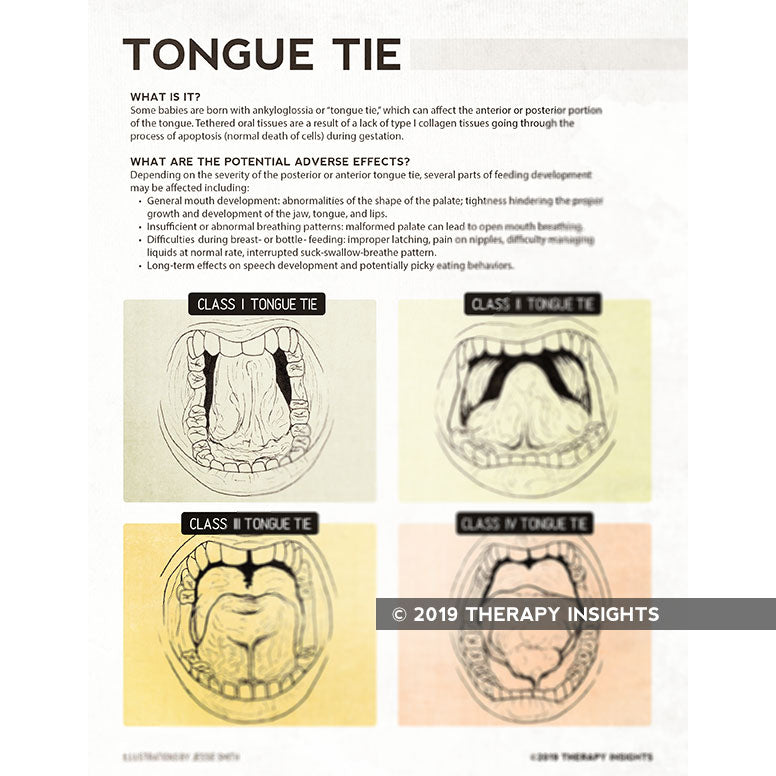 Tongue tie - Therapy resources for speech language pathologists working with the pediatric population - Pediatric SLP materials - Therpay Fix - Therapy Insights