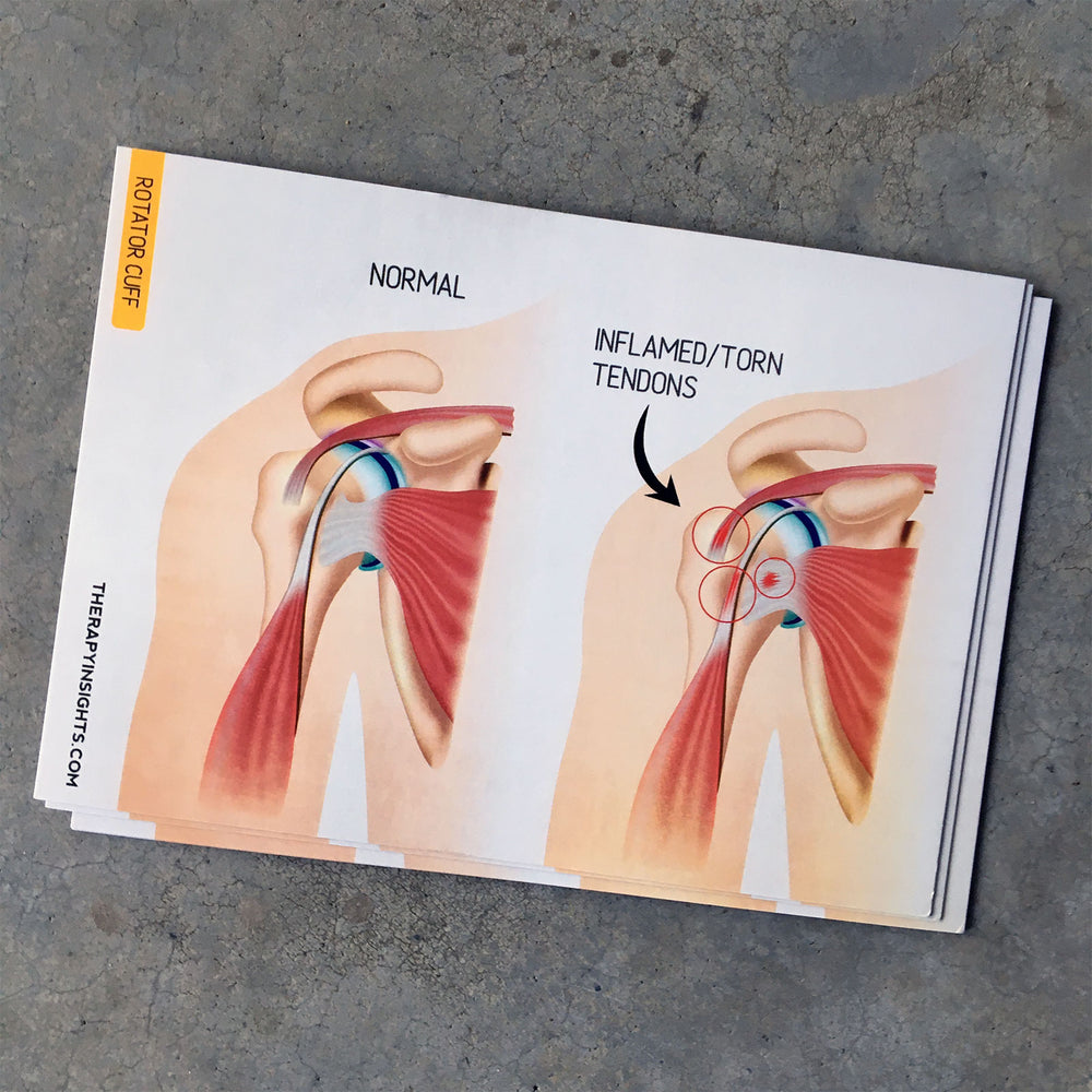 Load image into Gallery viewer, Clinical Anatomy Card: Rotator Cuff
