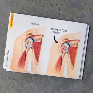 Clinical Anatomy Card: Rotator Cuff