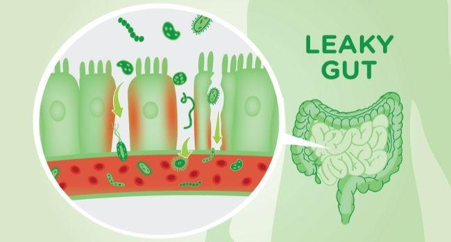 4 Supplements to Help Heal a Leaky Gut | kulture.store