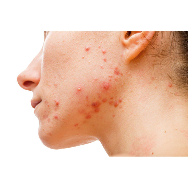 Acne Scar Treatments That Work - Natural and Medical