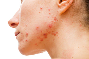 location of acne on your body reveals