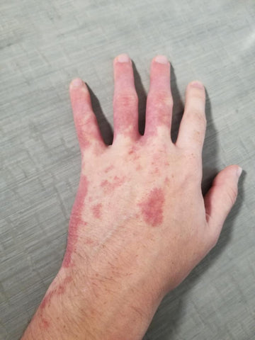 hyperpigmentation-on-hands