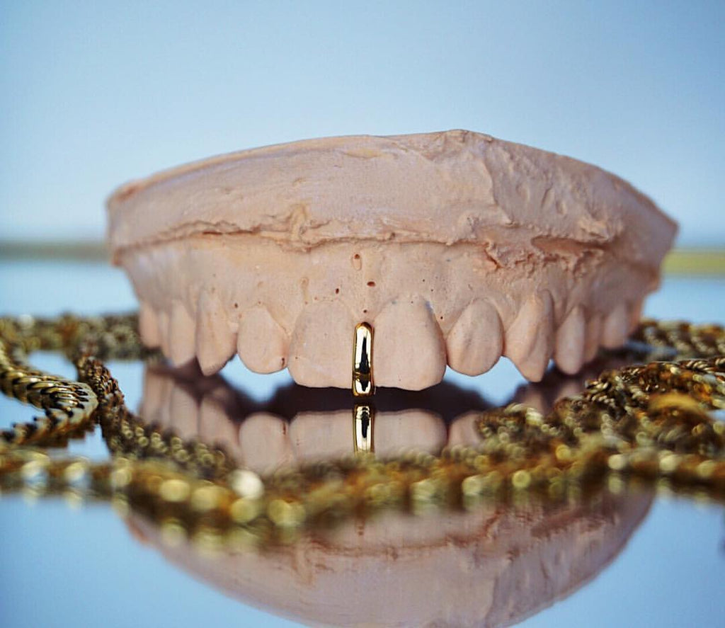 Gold Gap Filler Grillz