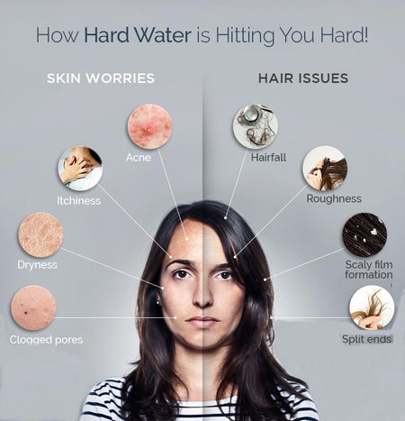 How can hard water affect you