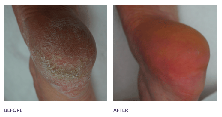 Footlogix Before and After Callus Heel