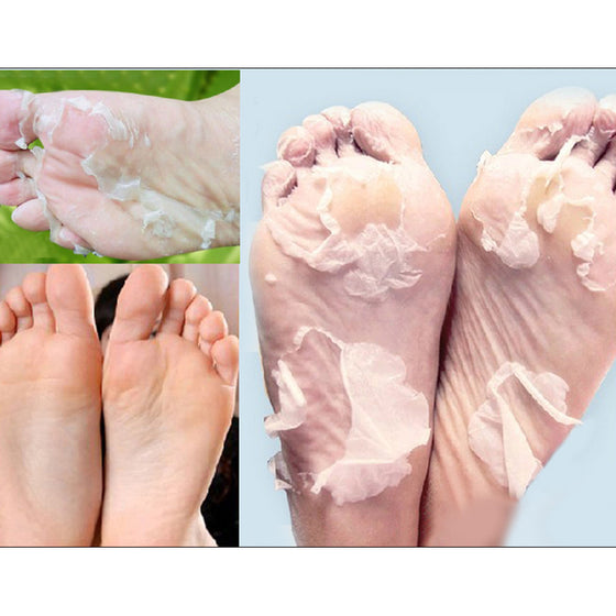 Hot! 1Packs Peeling Feet Mask Exfoliating Socks Baby Care Pedicure Socks Remove Dead Skin Cuticles Suso Socks For Pedicure - Super Deal Hero