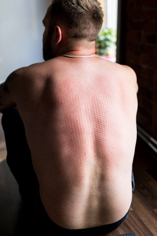 Acupressure for Back