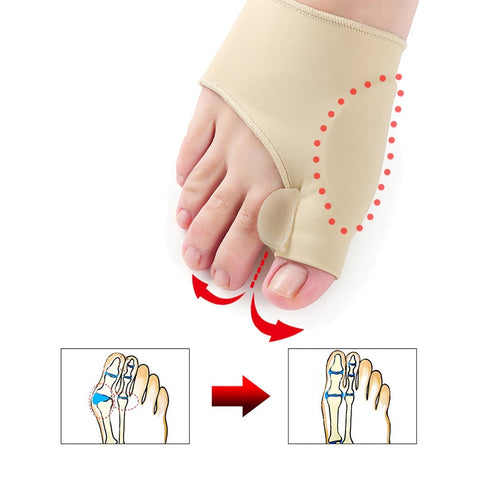 Bunion Relief Braces
