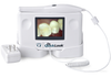 "Original Intraoral Viewer with 3.5"" Screen - DrQuickLook"