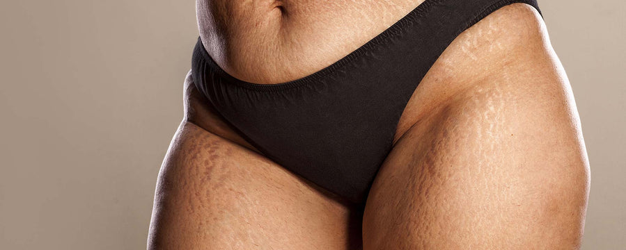 Most Reliable Cellulite and Stretch Mark Treatments