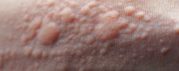 Skin Eruptions Signal Underlying Disorders