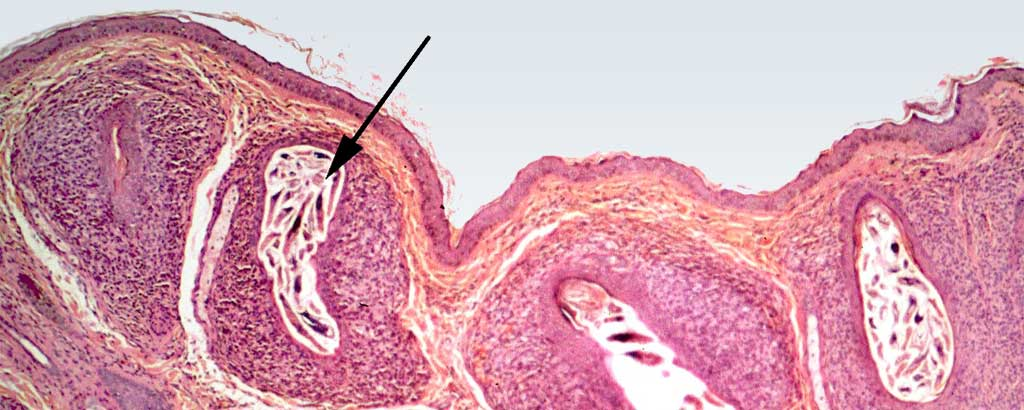 Demodicosis proliferation within hair follicle