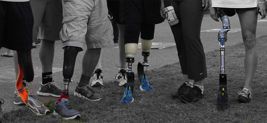 Where Do We Stand On Prosthetics? - ABR