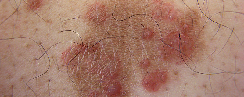 Mold causes skin rashes