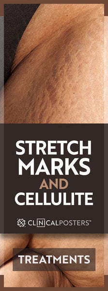 Cellulite and Stretch Mark Treatments