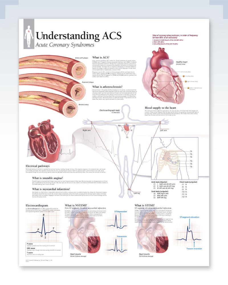Acute Coronary Syndrome Anatomy Poster