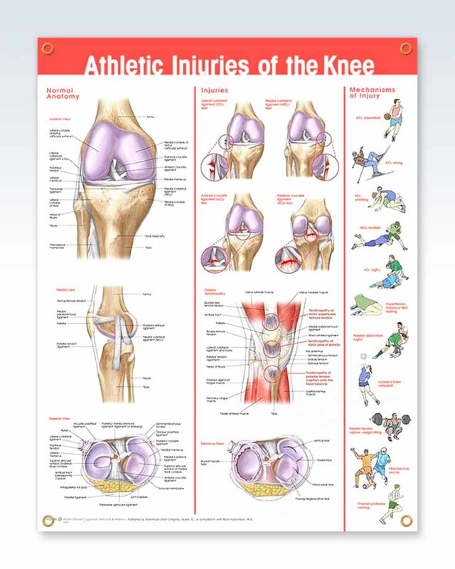 Athletic Knee Injuries Anatomy Poster – ClinicalPosters