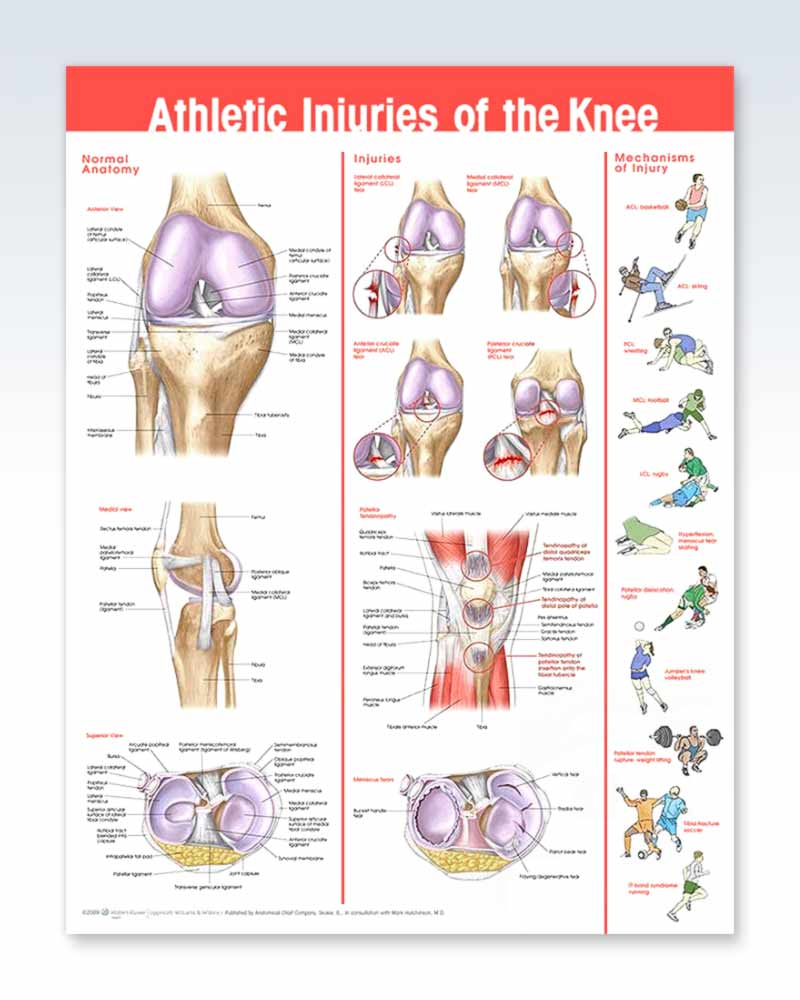 Athletic Knee Injuries Anatomy Poster Clinicalposters