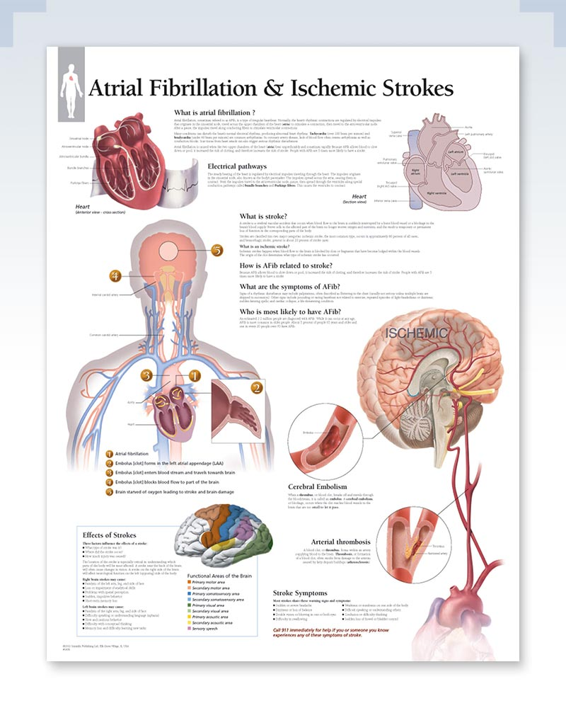 Atrial Fibrillation and Ischemic Strokes poster
