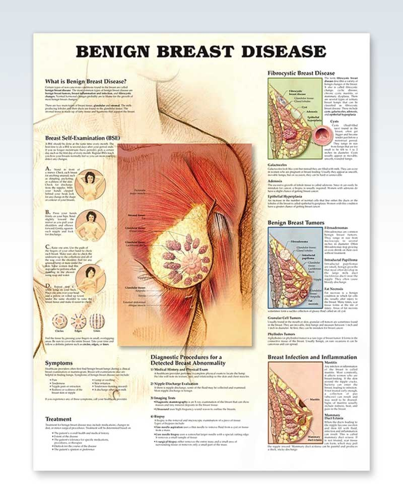 Benign Breast Disease anatomy poster