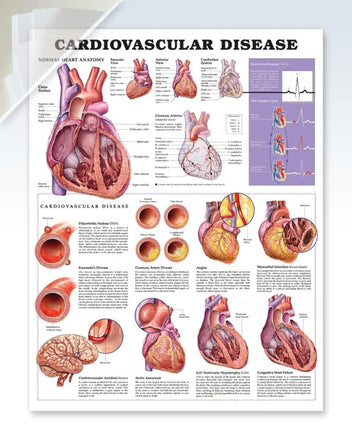 Cardiovascular Disease damaged anatomy poster