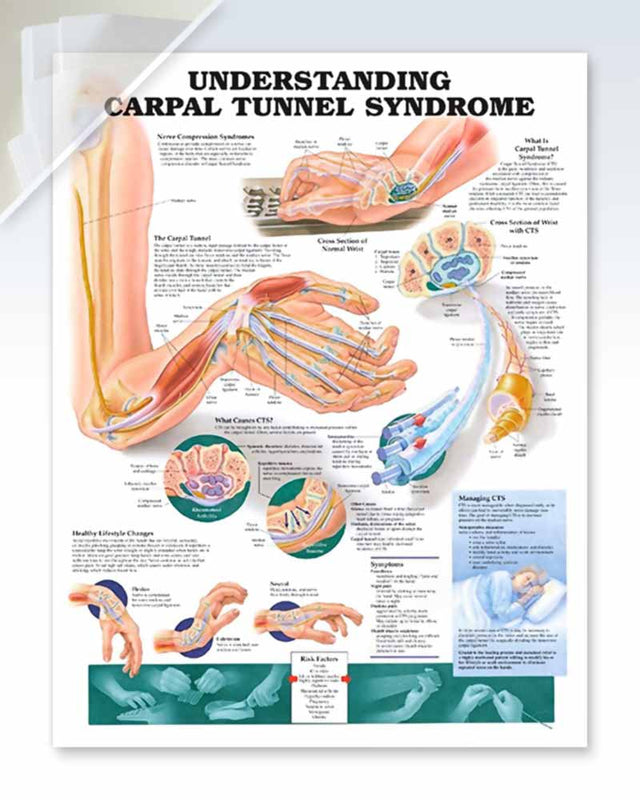 Carpal Tunnel Syndrome damaged poster