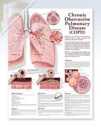 COPD damaged anatomy poster
